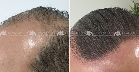 micropigmentação capilar para cabelo grande e transplante