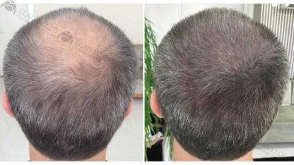 micropigmentação capilar fundo sombreado grisalho
