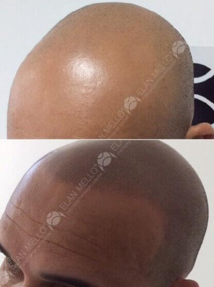 micropigmentação capilar para calvicie cabelo raspado