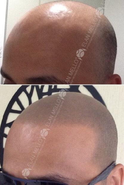 micropigmentação capilar simulando cabelo raspado