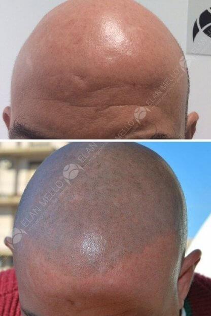 micropigmentação capilar cabelo raspado