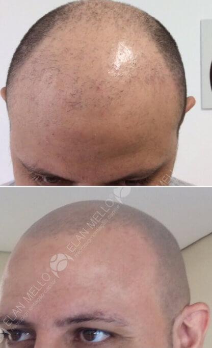 micropigmentação capilar de cabelo raspado