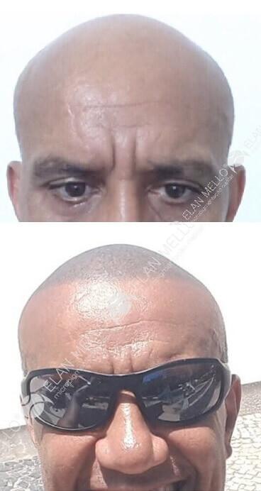 micropigmentação capilar de cabelo raspado para calvície