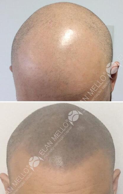 micropigmentação capilar para cabelo raspado