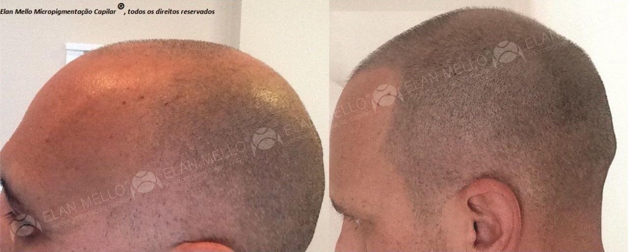 micropigmentação capilar cabelo rapado camuflar calvície