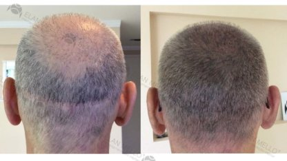 micropigmentação capilar fundo sombreado grisalho cicatriz
