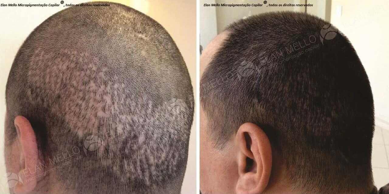 Micropigmentação Capilar reparo de cicatriz transplante calvície