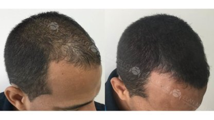 micropigmentação capilar fundo escurecendo calvície