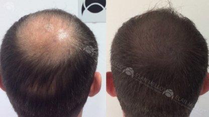 micropigmentação capilar fundo sombreamento calvície