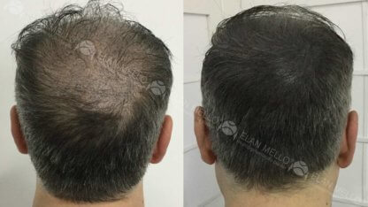 micropigmentação capilar fundo sombreado