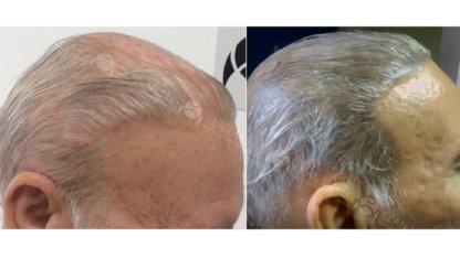 micropigmentação capilar calvície com cabelo branco