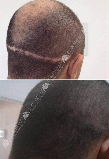 micropigmentação capilar camuflando cicatriz de transplante