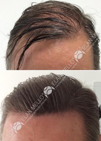micropigmentação capilar para homem com cabelo grande