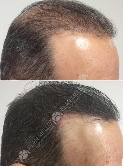 micropigmentação capilar para homem com transplante e cabelo grande