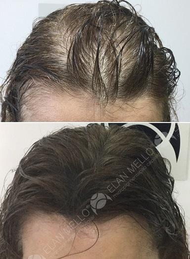 micropigmentação capilar em mulher com calvície feminina