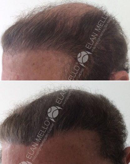 micropigmentação capilar em homem com cabelo grande de transplante
