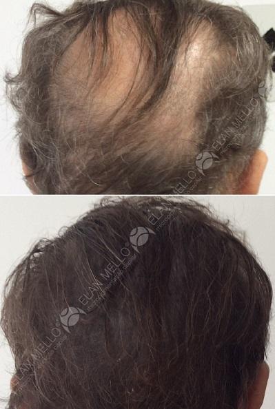 micropigmentação capilar com cabelo grande transplante para homem