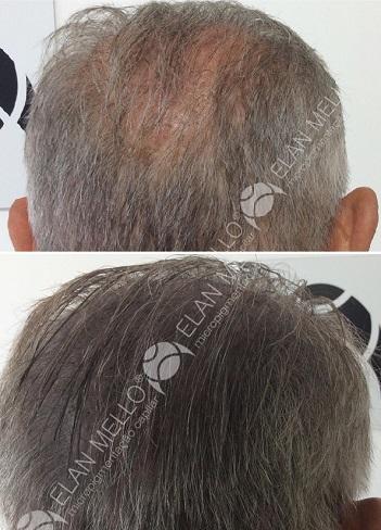 micropigmentação capilar para cabelos brancos e grisalhos