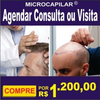 agendar consulta micropigmentação capilar microcapilar