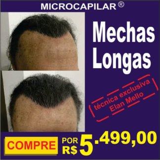 Micropigmentação Capilar microcapilar escurece fundo cabelo grande transplante