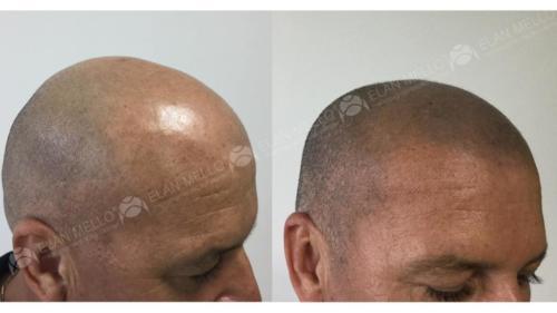 Micropigmentação Capilar raspado