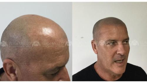 Micropigmentação Capilar técnica cabelo raspado
