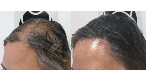 Micropigmentação Capilar feminina