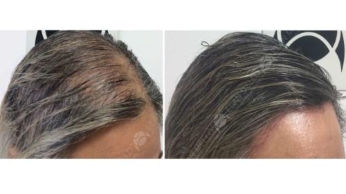 Micropigmentação Capilar calvície feminina
