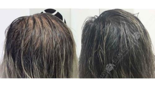 Micropigmentação Capilar em mulher calvície feminina
