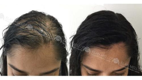 Micropigmentação Capilar para mulher