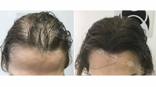 Micropigmentação Capilar mulher