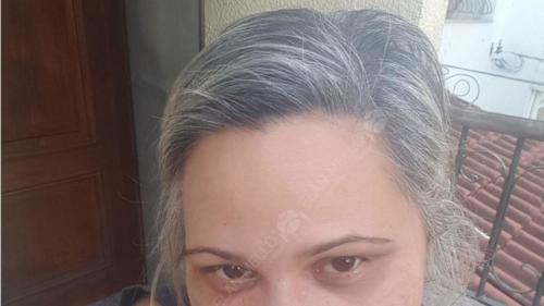 resultado de Micropigmentação Capilar em mulher