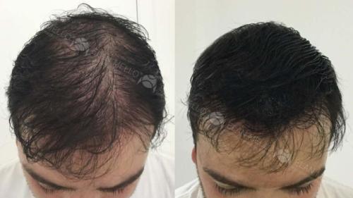 micropigmentacao-capilar-fundo-sombreamento