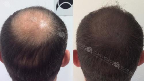 micropigmentacao-capilar-fundo-sombreamento (1)