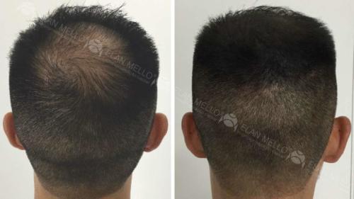 micropigmentacao-capilar-fundo (1)