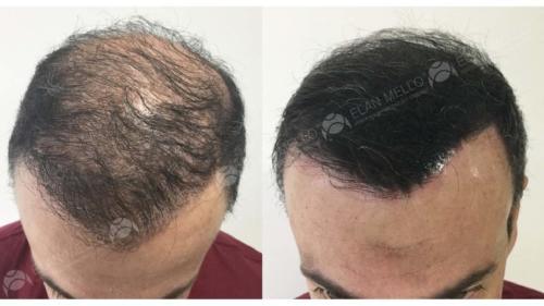 micropigmentacao-capilar-sombreamento