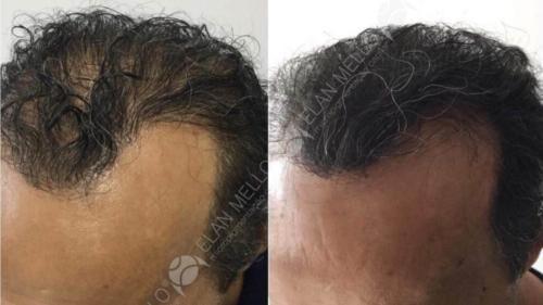 Micropigmentação Capilar transplante masculino