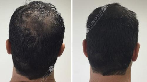 Micropigmentação Capilar sombreamento transplante