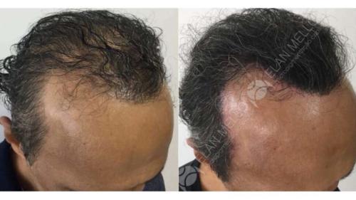 Micropigmentação Capilar fundo sombreamento