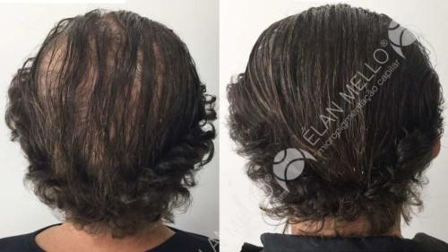 Micropigmentação Capilar sombreamento