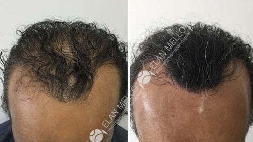 Micropigmentação Capilar fundo transplante